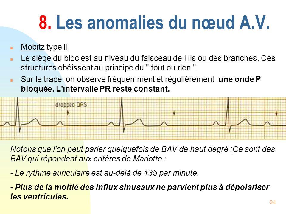 94 8. Les anomalies du nœud A.V. n Mobitz type II n Le siège du bloc est au niveau du faisceau de His ou des branches. Ces structures obéissent au pri