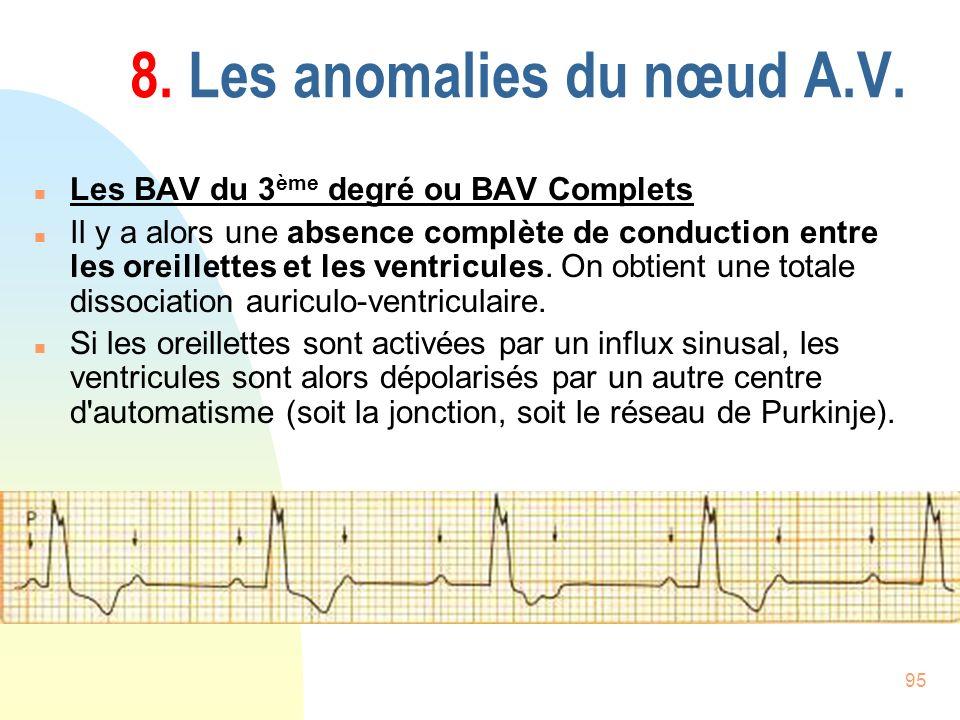 95 8. Les anomalies du nœud A.V. n Les BAV du 3 ème degré ou BAV Complets n Il y a alors une absence complète de conduction entre les oreillettes et l