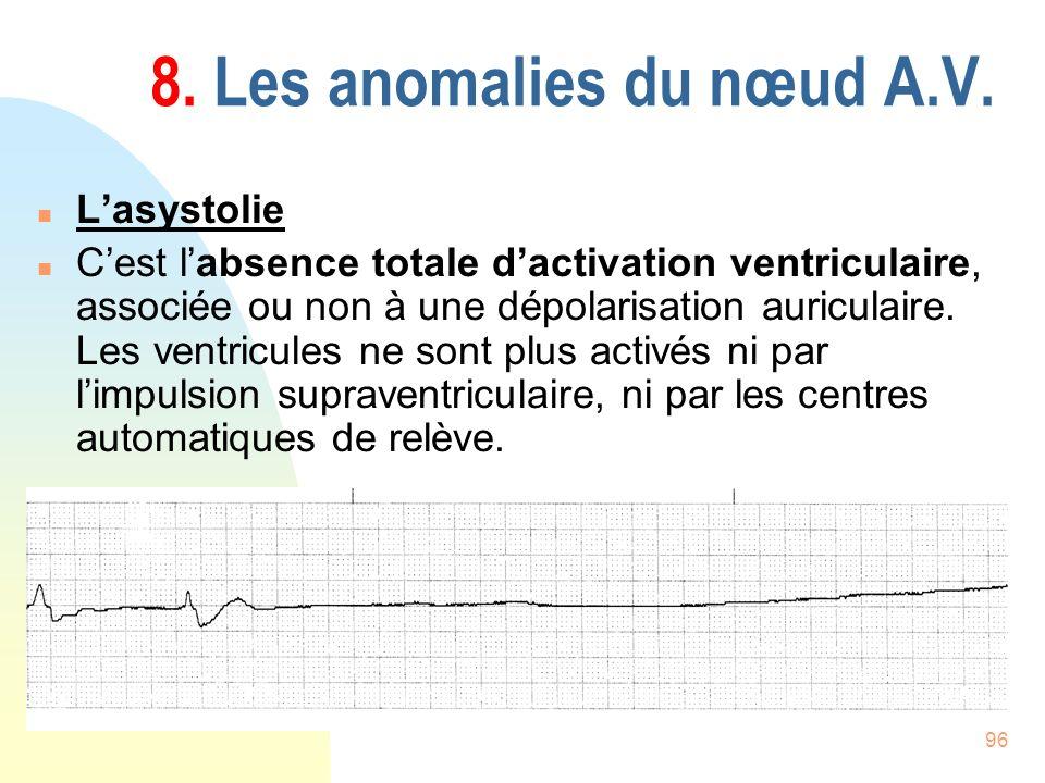 96 8. Les anomalies du nœud A.V. n Lasystolie n Cest labsence totale dactivation ventriculaire, associée ou non à une dépolarisation auriculaire. Les