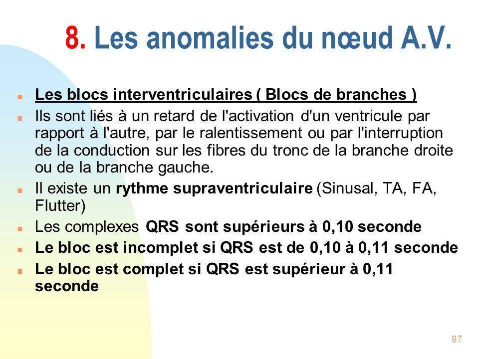 97 8. Les anomalies du nœud A.V. n Les blocs interventriculaires ( Blocs de branches ) n Ils sont liés à un retard de l'activation d'un ventricule par
