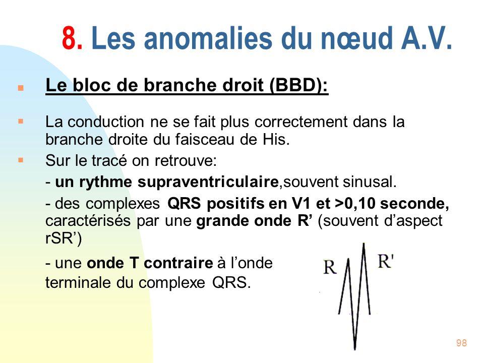 98 8. Les anomalies du nœud A.V. n Le bloc de branche droit (BBD): La conduction ne se fait plus correctement dans la branche droite du faisceau de Hi
