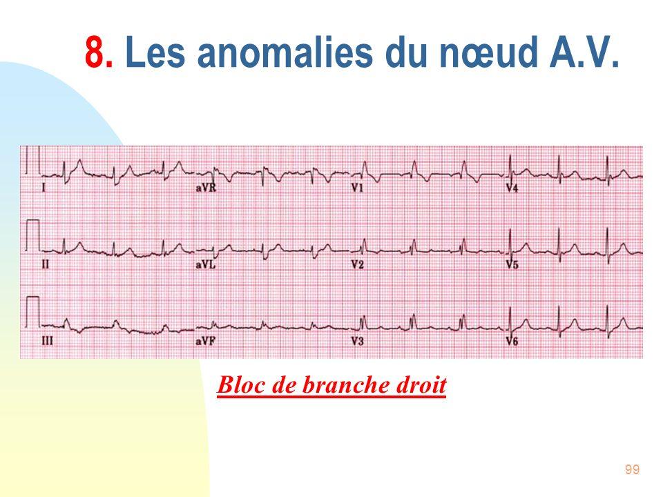 99 8. Les anomalies du nœud A.V. Bloc de branche droit