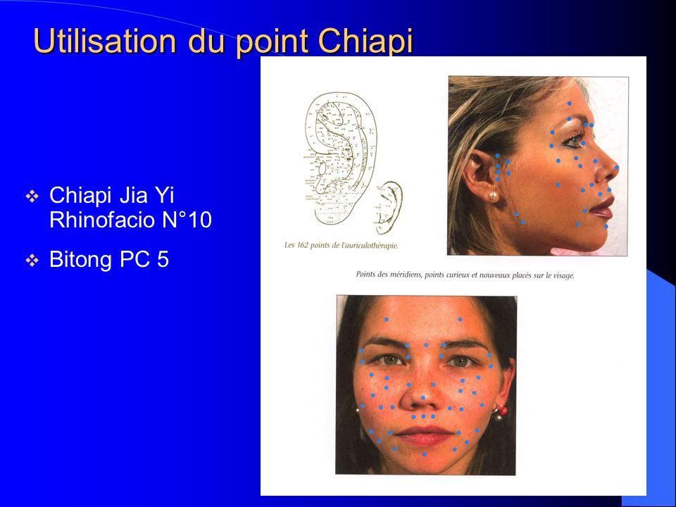 Utilisation du point Chiapi Chiapi Jia Yi Rhinofacio N°10 Bitong PC 5