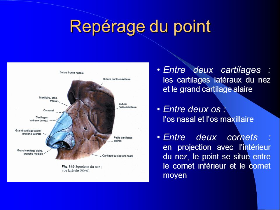 Repérage du point Entre deux cartilages : les cartilages latéraux du nez et le grand cartilage alaire Entre deux os : los nasal et los maxillaire Entre deux cornets : en projection avec lintérieur du nez, le point se situe entre le cornet inférieur et le cornet moyen