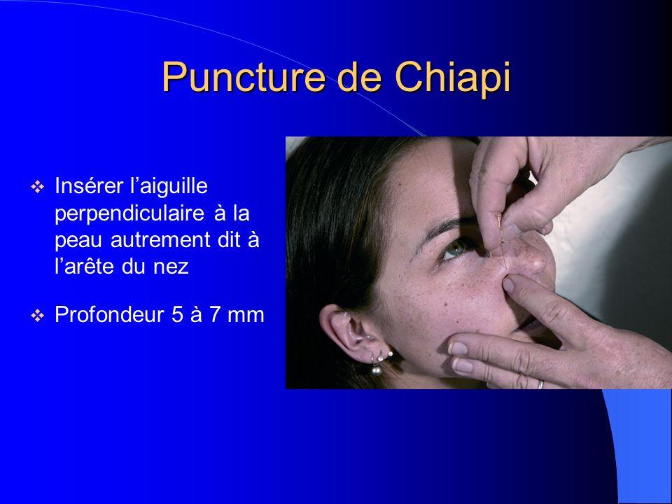 Puncture de Chiapi Insérer laiguille perpendiculaire à la peau autrement dit à larête du nez Profondeur 5 à 7 mm