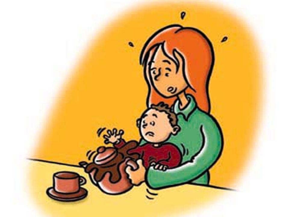 LES CAS CONCRETS LES BRULURES: 1 victime (mannequin bébé) 1 parent très inquiet 1témoin 1 SST Materiel : video /ordi/ 1 jeu de dinette/1 mannequin bb