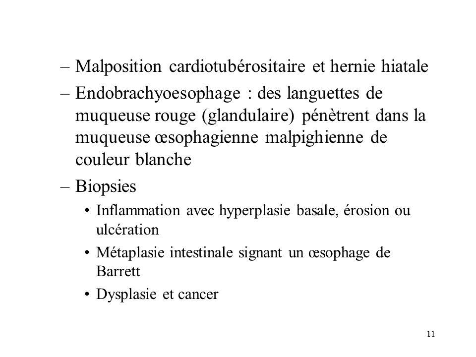 11 –Malposition cardiotubérositaire et hernie hiatale –Endobrachyoesophage : des languettes de muqueuse rouge (glandulaire) pénètrent dans la muqueuse