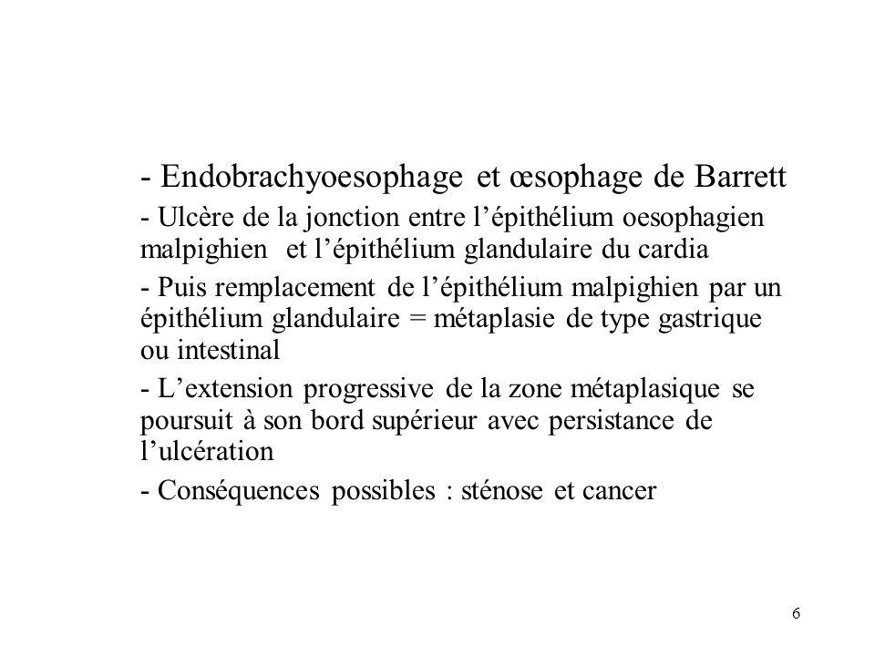 6 - Endobrachyoesophage et œsophage de Barrett - Ulcère de la jonction entre lépithélium oesophagien malpighien et lépithélium glandulaire du cardia -
