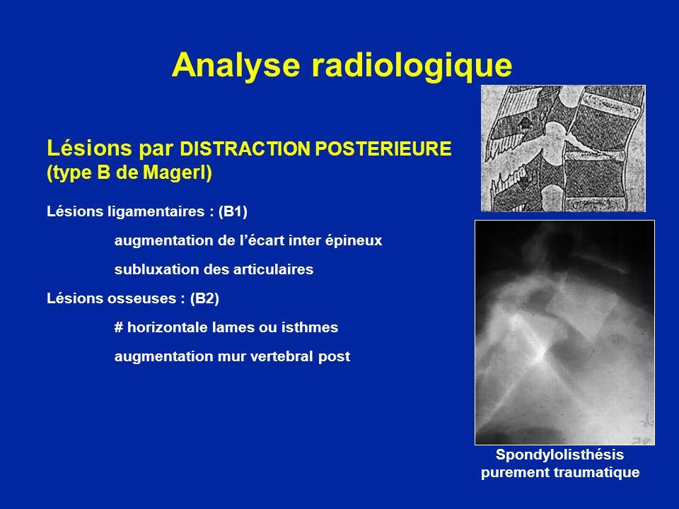 Lésions par DISTRACTION POSTERIEURE (type B de Magerl) Lésions ligamentaires : (B1) augmentation de lécart inter épineux subluxation des articulaires