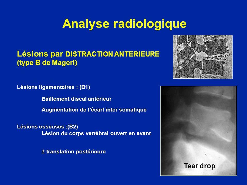 Lésions par DISTRACTION ANTERIEURE (type B de Magerl) Lésions ligamentaires : (B1) Bâillement discal antérieur Augmentation de lécart inter somatique