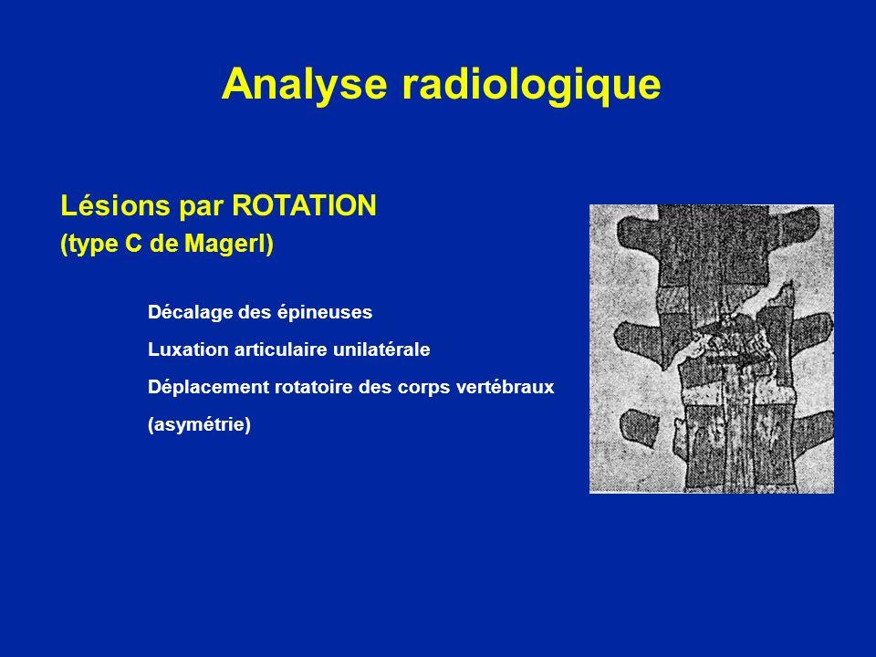 Lésions par ROTATION (type C de Magerl) Décalage des épineuses Luxation articulaire unilatérale Déplacement rotatoire des corps vertébraux (asymétrie)
