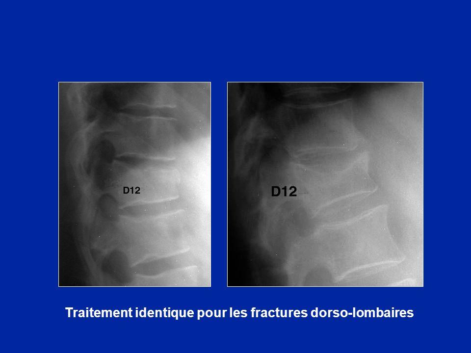 Traitement identique pour les fractures dorso-lombaires