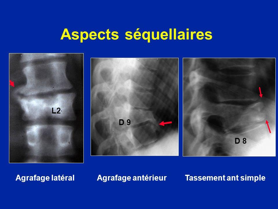 Aspects séquellaires Agrafage latéral Agrafage antérieur Tassement ant simple L2 D 9 D 8