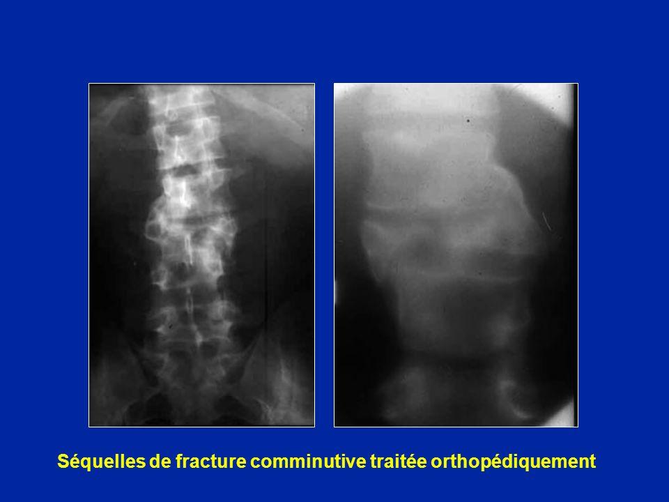 Séquelles de fracture comminutive traitée orthopédiquement