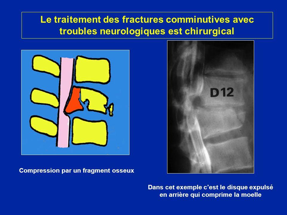 Dans cet exemple cest le disque expulsé en arrière qui comprime la moelle Compression par un fragment osseux Le traitement des fractures comminutives