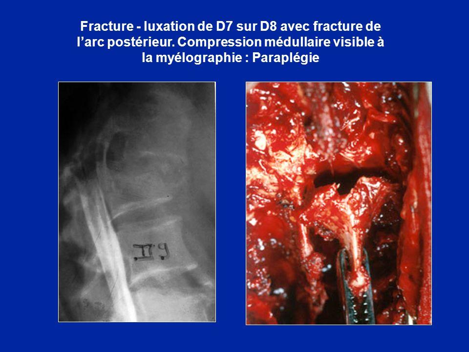 Fracture - luxation de D7 sur D8 avec fracture de larc postérieur. Compression médullaire visible à la myélographie : Paraplégie