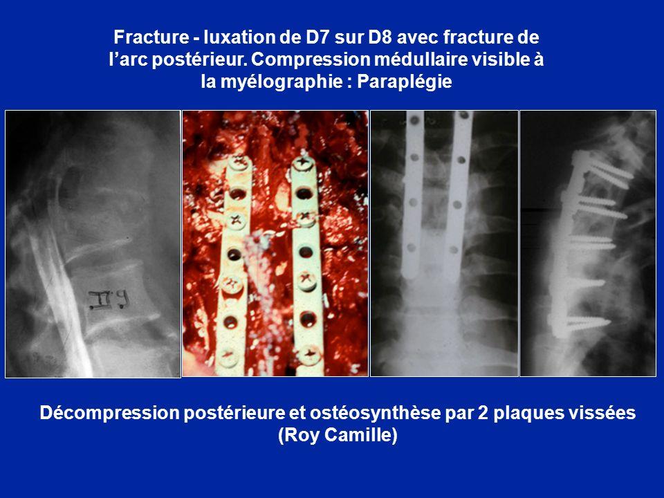 Décompression postérieure et ostéosynthèse par 2 plaques vissées (Roy Camille) Fracture - luxation de D7 sur D8 avec fracture de larc postérieur. Comp
