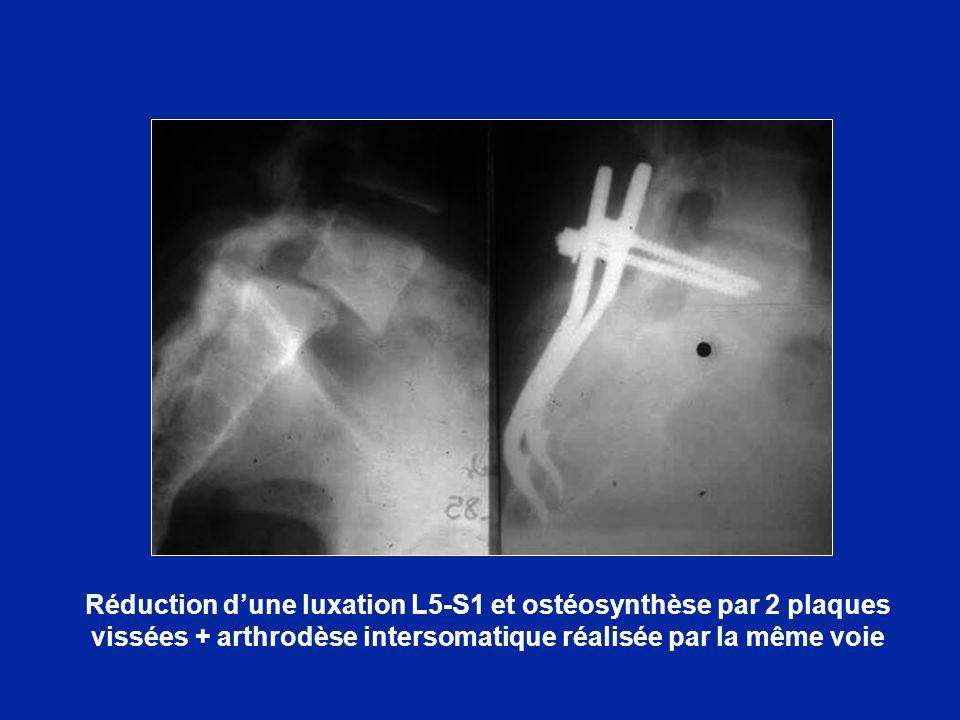 Réduction dune luxation L5-S1 et ostéosynthèse par 2 plaques vissées + arthrodèse intersomatique réalisée par la même voie