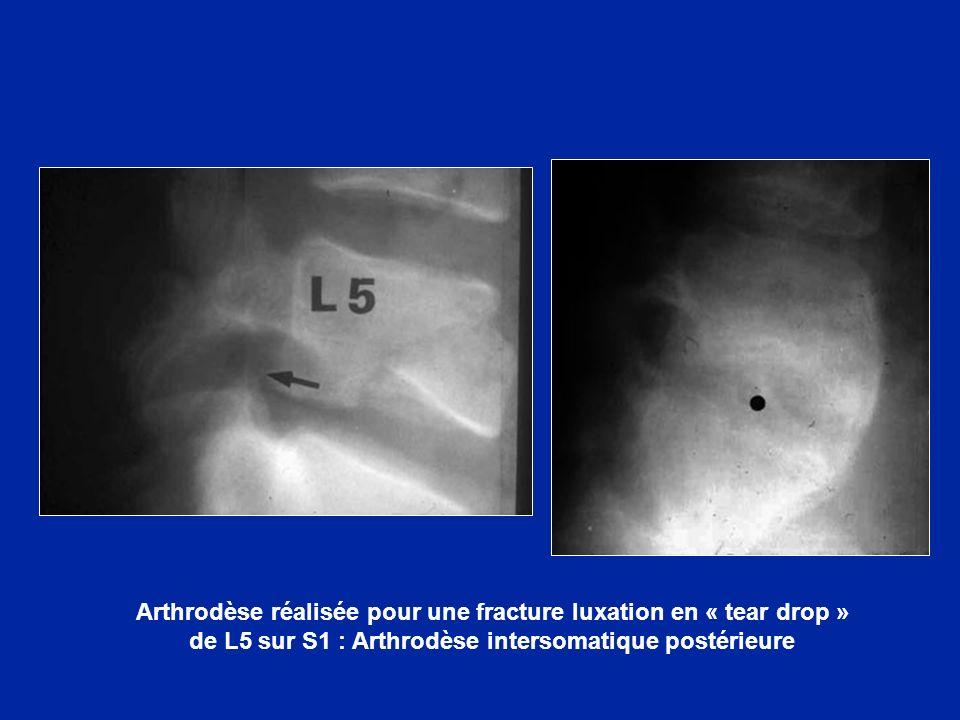 Arthrodèse réalisée pour une fracture luxation en « tear drop » de L5 sur S1 : Arthrodèse intersomatique postérieure