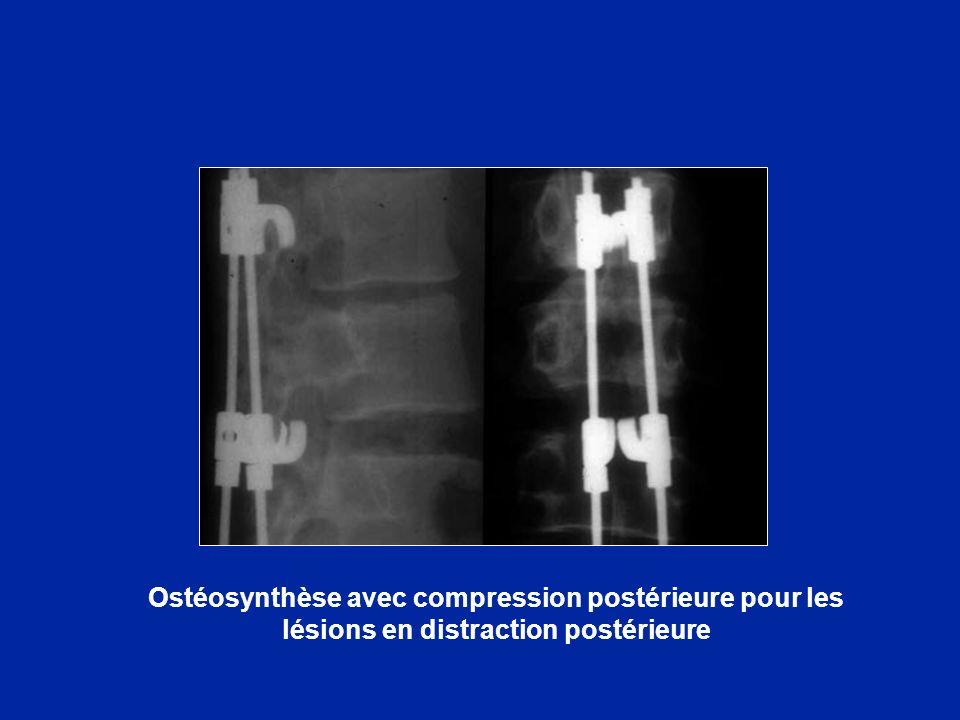 Ostéosynthèse avec compression postérieure pour les lésions en distraction postérieure