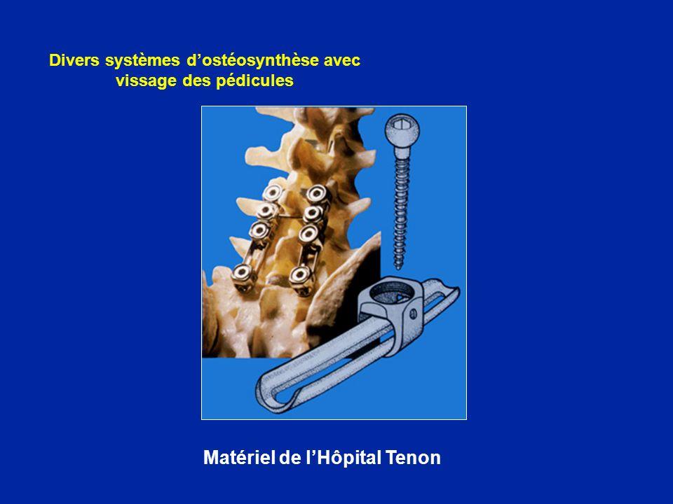 Matériel de lHôpital Tenon Divers systèmes dostéosynthèse avec vissage des pédicules