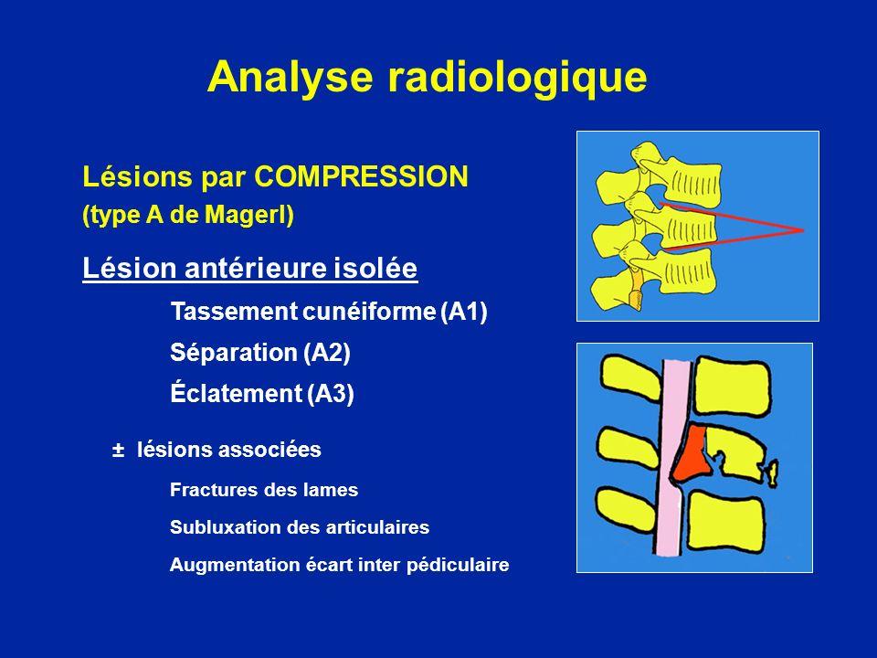 Fractures comminutives Eléments compressifs dans le canal médullaire bien mis en évidence par le SCANNER, LIRM