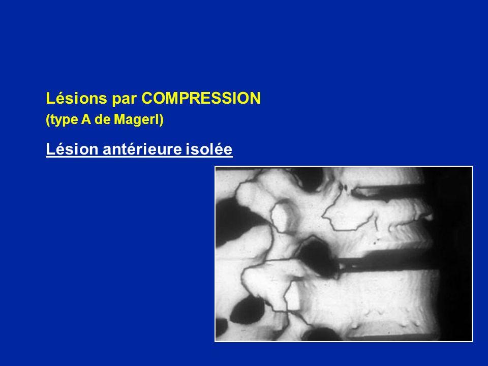 DÉFORMATION DU CANAL RACHIDIEN = risque évolutif neurologique par luxation unilatérale articulaire par rétrécissement du canal et compression médullaire recul mur post > 50%