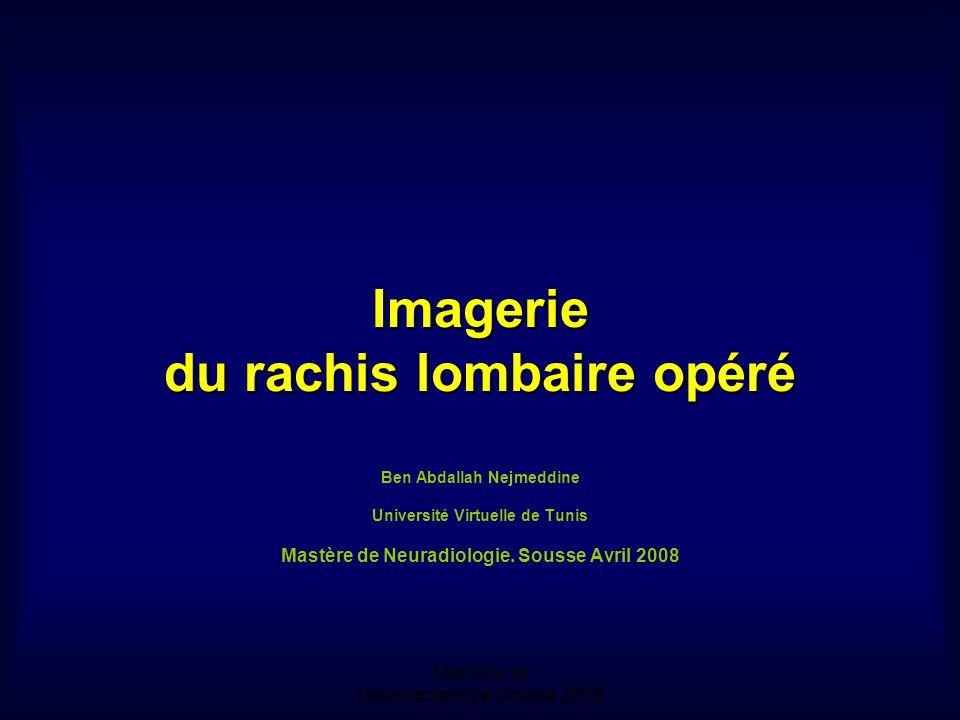 Mastère de Neuroradiologie.Sousse 2008 Imagerie du rachis lombaire opéré Imagerie du rachis lombaire opéré Ben Abdallah Nejmeddine Université Virtuelle de Tunis Mastère de Neuradiologie.