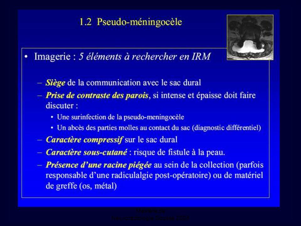 Mastère de Neuroradiologie.Sousse 2008