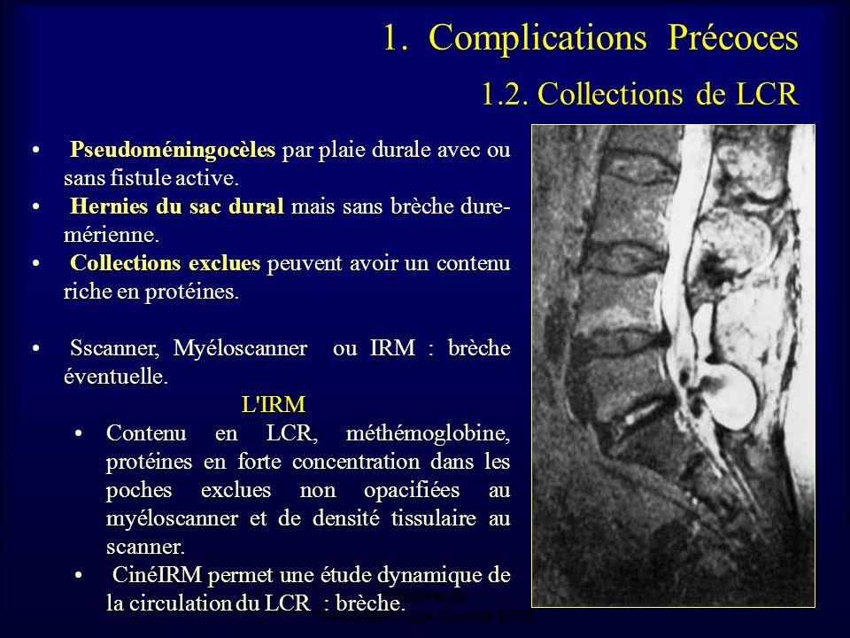 1.Complications Précoces 1.2.