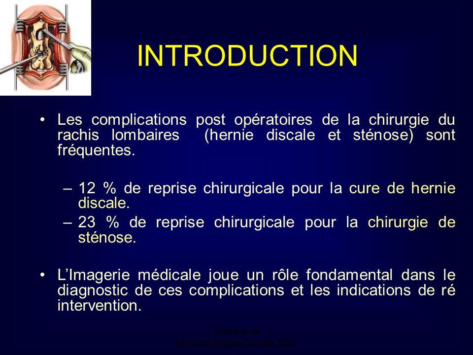 Mastère de Neuroradiologie.Sousse 2008 INTRODUCTION Les complications post opératoires de la chirurgie du rachis lombaires (hernie discale et sténose) sont fréquentes.