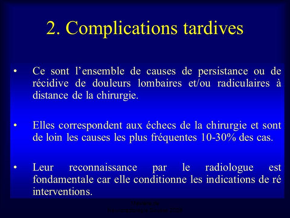 2. Complications tardives Ce sont lensemble de causes de persistance ou de récidive de douleurs lombaires et/ou radiculaires à distance de la chirurgi