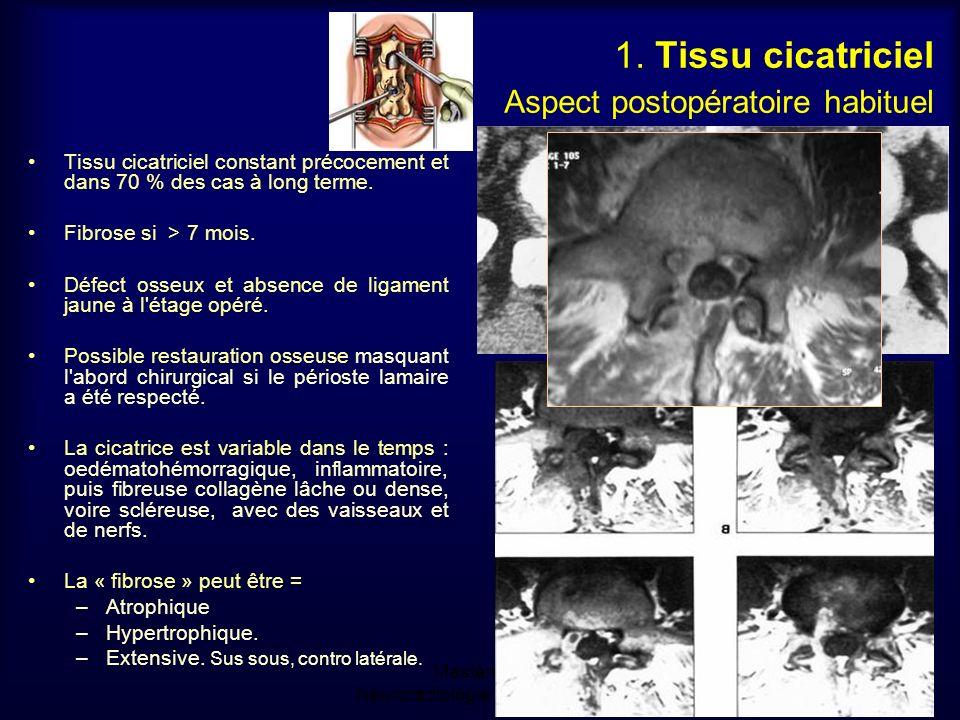 Mastère de Neuroradiologie.Sousse 2008 1.