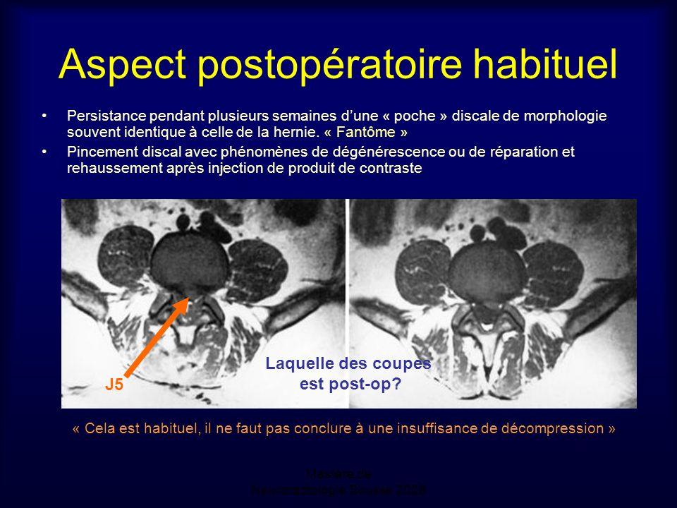 Mastère de Neuroradiologie.Sousse 2008 Aspect postopératoire habituel Persistance pendant plusieurs semaines dune « poche » discale de morphologie souvent identique à celle de la hernie.