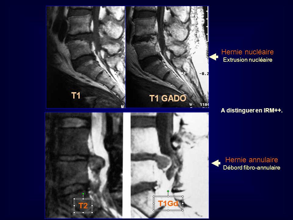 Mastère de Neuroradiologie.Sousse 2008 Hernie nucléaire Extrusion nucléaire Hernie annulaire Débord fibro-annulaire A distinguer en IRM++.
