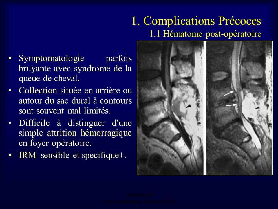 1. Complications Précoces 1.1 Hématome post-opératoire Symptomatologie parfois bruyante avec syndrome de la queue de cheval. Collection située en arri