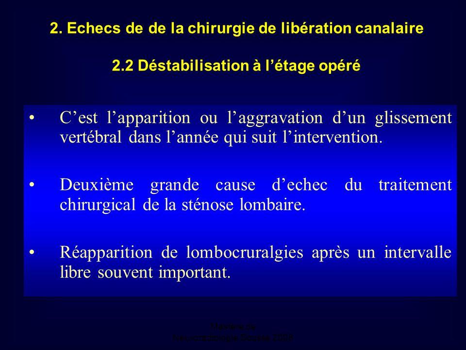 Mastère de Neuroradiologie.Sousse 2008 2.