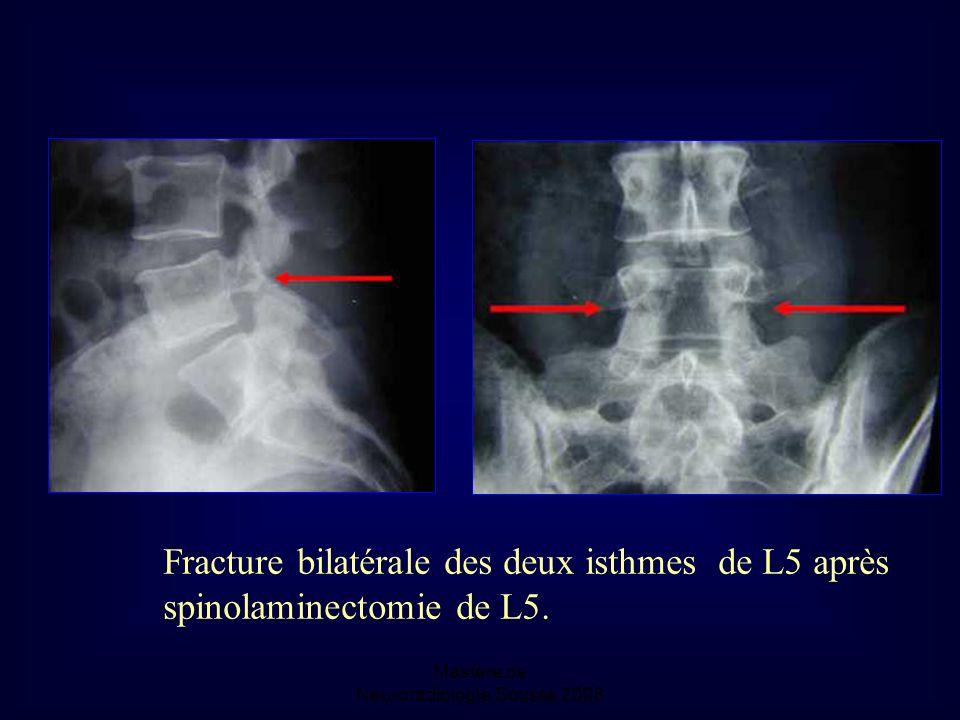 Mastère de Neuroradiologie.Sousse 2008 Fracture bilatérale des deux isthmes de L5 après spinolaminectomie de L5.