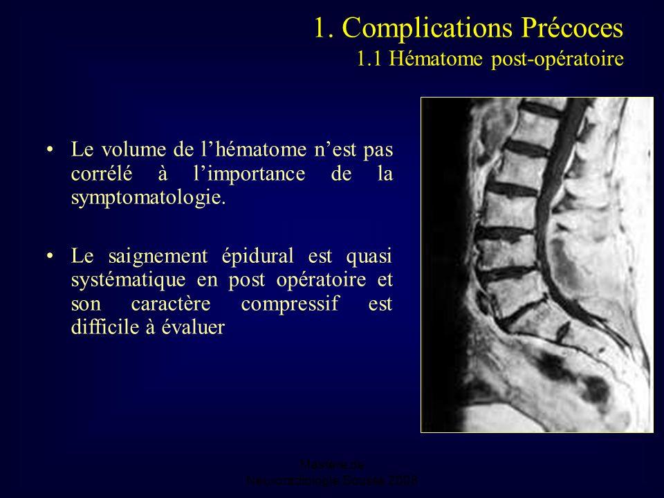 Mastère de Neuroradiologie.Sousse 2008 Le volume de lhématome nest pas corrélé à limportance de la symptomatologie.