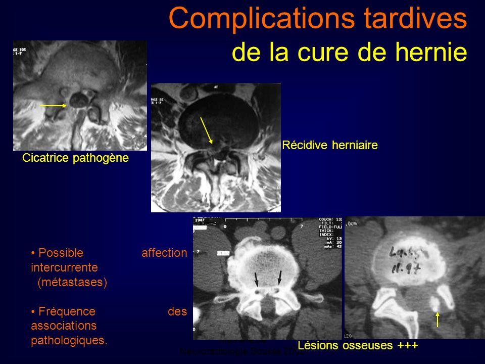 Mastère de Neuroradiologie.Sousse 2008 Complications tardives de la cure de hernie Cicatrice pathogène Récidive herniaire Lésions osseuses +++ Possible affection intercurrente (métastases) Fréquence des associations pathologiques.