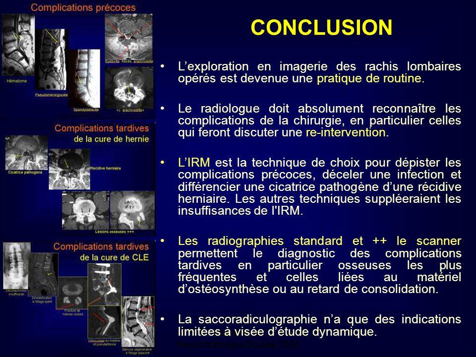 Mastère de Neuroradiologie.Sousse 2008 Lexploration en imagerie des rachis lombaires opérés est devenue une pratique de routine.