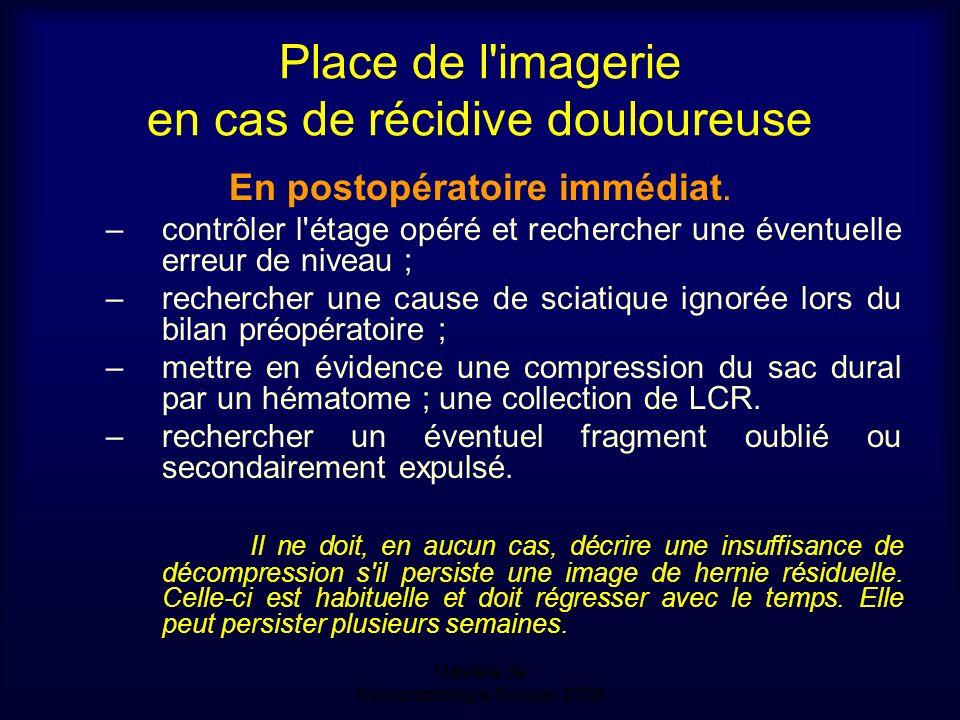 Mastère de Neuroradiologie.Sousse 2008 Place de l imagerie en cas de récidive douloureuse En postopératoire immédiat.