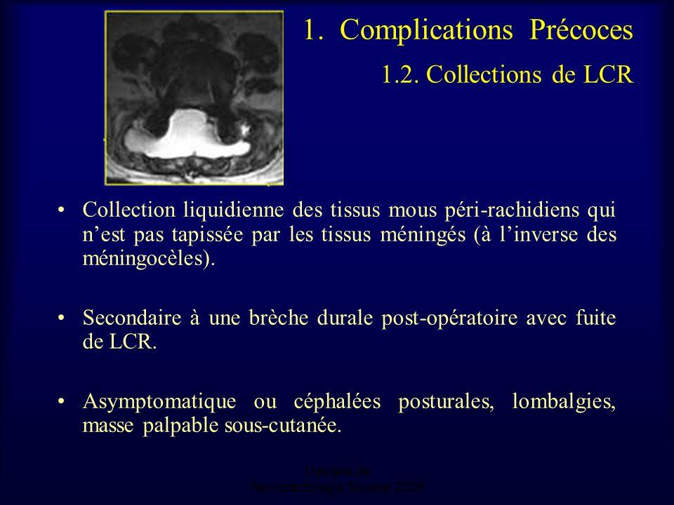 Mastère de Neuroradiologie.Sousse 2008 1.Complications Précoces 1.2.