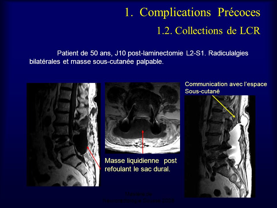 Mastère de Neuroradiologie.Sousse 2008 1. Complications Précoces 1.2. Collections de LCR Patient de 50 ans, J10 post-laminectomie L2-S1. Radiculalgies