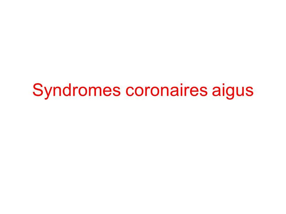 Syndromes coronaires aigus