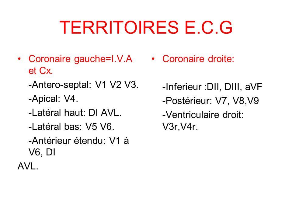 TERRITOIRES E.C.G Coronaire gauche=I.V.A et Cx.-Antero-septal: V1 V2 V3.