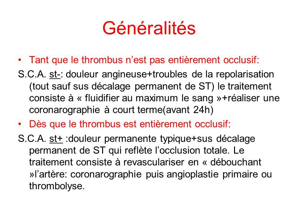 Généralités Tant que le thrombus nest pas entièrement occlusif: S.C.A.