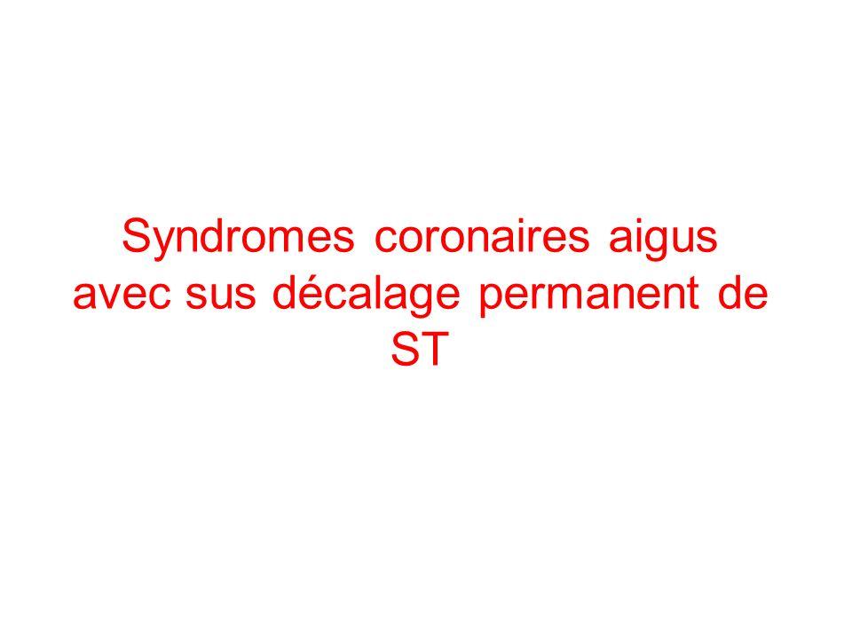 Syndromes coronaires aigus avec sus décalage permanent de ST