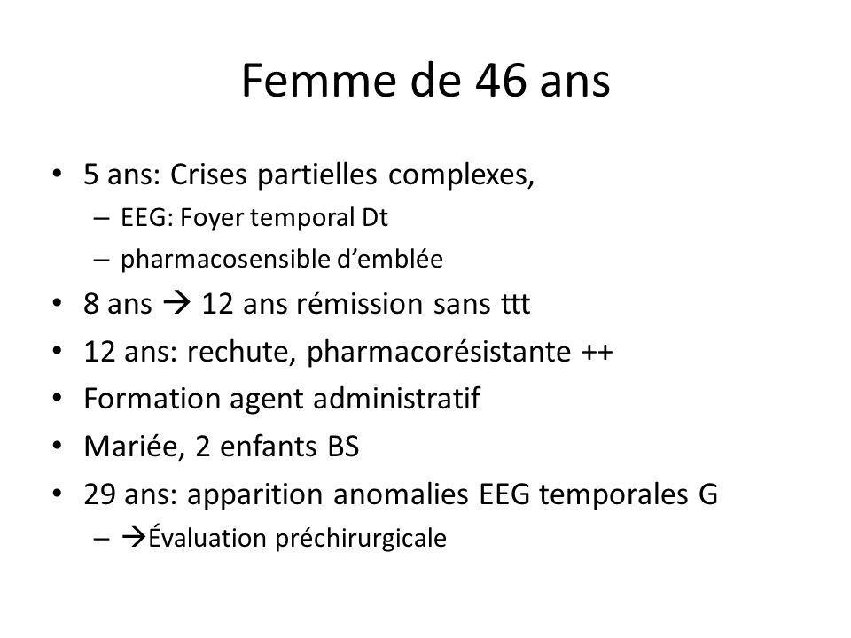 Femme de 46 ans 5 ans: Crises partielles complexes, – EEG: Foyer temporal Dt – pharmacosensible demblée 8 ans 12 ans rémission sans ttt 12 ans: rechut