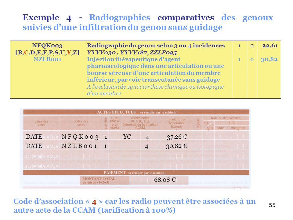 55 Exemple 4 - Radiographies comparatives des genoux suivies dune infiltration du genou sans guidage DATE N Z L B 0 0 1 1 4 30,82 68,08 DATE N F Q K 0